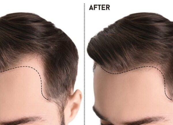 A Review of Hair Transplant Turkey