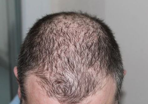 Everything You Should Know About Dealing With Alopecia Areata