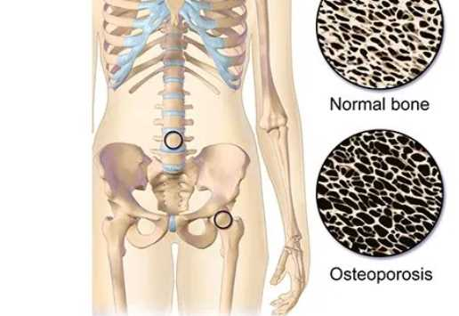 Learn everything you need to know about osteoporosis