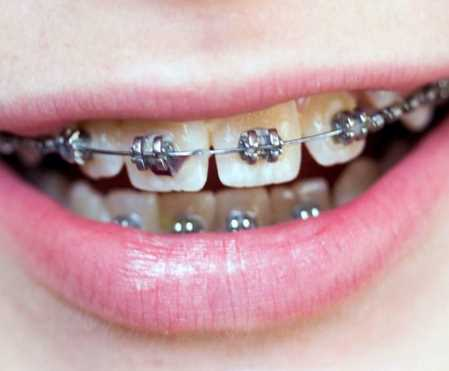 Why Should You Think About Getting Braces