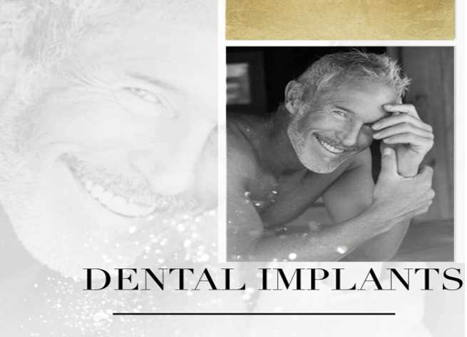 Is 3 on 6 Better Than All-on-4 Dental Implants?