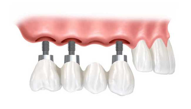 Is Dental Implants the Right Choice for You